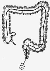 Colonoscopy image