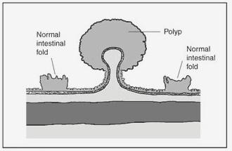 Polyps image 2